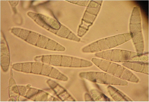Septate conidia of Trichophyton ajelloi from fungal blepharitis from Figure 1 ×400.