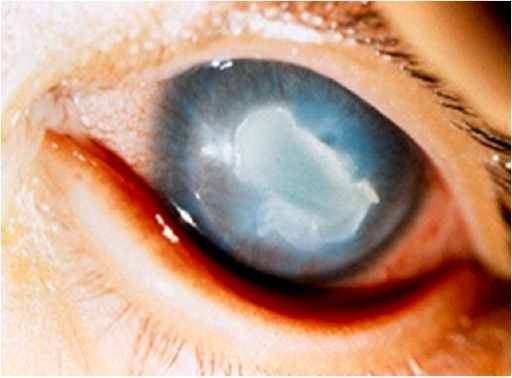 Candida albicans keratitis in an 8-month-old female.