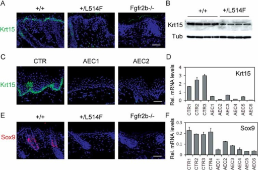 Reduced progenitor marker expression in p63+/L514F and Fgfr2b−/− mice and in skin of AEC patientsImmunostaining reveals reduced Krt15 expression (green) in the epidermis and in the hair follicle of p63+/L514F and Fgfr2b−/− compared to +/+ control. Nuclei are stained with DAPI. Scale bar: 50 µm.Immunoblotting for Krt15 confirms decreased protein expression in p63+/L514F epidermis compared to +/+. Tubulin was used to normalize samples.Immunostaining for Krt15 (green) of skin biopsies from AEC patients (AEC1 and AEC2) and a human unaffected control (CTR) demonstrates reduced Krt15 expression in AEC skin. Scale bar: 50 µm.Real-time RT-PCR for Krt15 mRNA in human skin isolated from AEC patients or controls (CTR) reveals a quantitative reduction of Krt15 mRNA levels in the skin of AEC patients compared to wild-type. Data are represented as mean ± SD (p-value = 0.026).Immunofluorescence for Sox9 on neonatal mouse skin reveals reduced Sox9 expression in p63+/L514F and Fgfr2b−/− compared to +/+ control. Scale bar: 50 µm.Levels of Sox9 mRNA in human skin isolated from AEC patients or controls (CTR) were assessed by real-time RT-PCR. Data are represented as mean ± SD (p-value = 3.85 × 10−5).