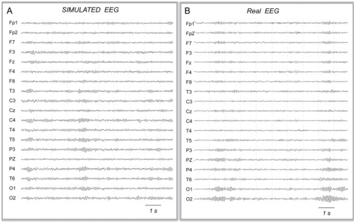Simulation of EEG under no-stimulation condition.A: Typical signals simulated in the absence of tACS stimulation (19 scalp electrodes, international 10–20 standard system). B: Real alpha activity recorded in a normal subject during wakefulness with eyes closed.