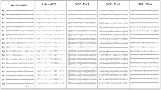 Example of simulated EEGs during variable frequency of tACS stimulation.A clear increase of the amplitude of alpha spindles is visible for 10 Hz- and 12 Hz- tACS but not for 6 Hz- or 14 Hz-tACS.