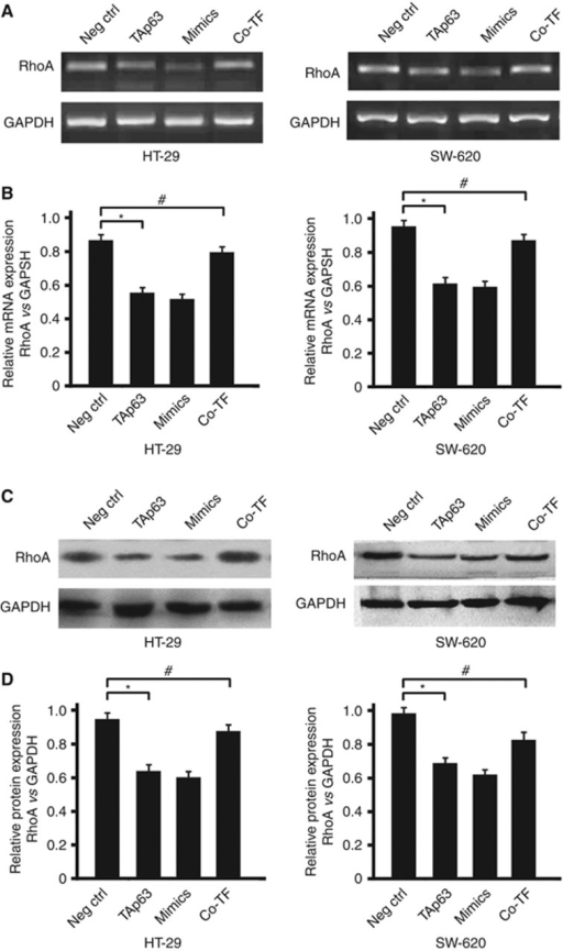 TAp63 targets RhoA through miR-133b. HT-29 and SW-620 cells were either transfected with negative control (Neg Ctrl), TAp63 or miR-133b mimics or co-transfected with TAp63-expressing vector with miR-133b inhibitor (co-TF) for 72 h. (A) RhoA induction levels were detected by RT–PCR. (B) Percentage of RhoA mRNA is expressed relative to GAPDH. (C) Western blotting of RhoA levels in HT-29- and SW-620-transfected cells. (D) Percentage of RhoA protein is expressed relative to GAPDH. All data represent the means±s.d. of three different experiments analysed in triplicate. *P<0.05, #P>0.05.