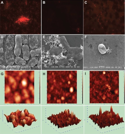 Images of Acinetobacter baumannii biofilm formation and inhibition using fluorescence microscopy, scanning electron microscopy (SEM), and atomic force microscopy (AFM). Upper panel, fluorescence microscopy; middle panel, SEM; lower panel, AFM. (A,D,G) Biofilm formation; (B,E,H) biofilm inhibition with AgNPs; (C,F,I) biofilm inhibition with AgAuNPs.Abbreviations: AgNPs, silver nanoparticles; AgAuNPs, bimetallic NPs.