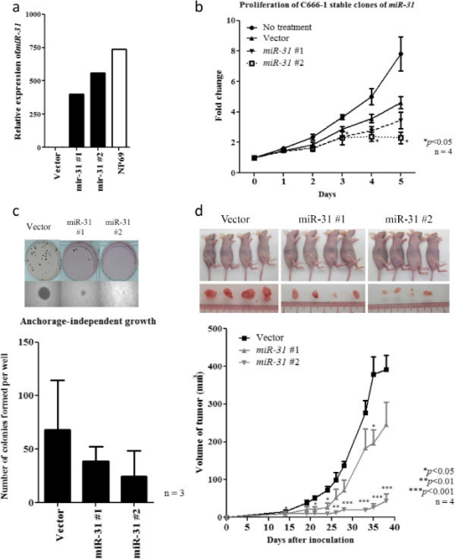 Stable ectopic miR-31 expression suppresses the anchorage-independent growth and in vivo tumorigenicity of NPC cells. (a) Expression of miR-31 was demonstrated in the stably miR-31-transfected C666-1 cell clones (miR31#1 and miR31#2) by quantitative RT-PCR. The immortalized normal nasopharyngeal epithelial cells NP69 was included as control. (b) In the two stably miR-31-transfected NPC cell clones (miR31#1 and miR31#2), obvious growth inhibition was demonstrated by WST-1 assay. (c) Stable expression of miR-31 inhibits the anchorage-independent growth of C666-1 cells. Obviously reduction in number and size of colonies in the stable miR-31-expressing cells were demonstrated by soft agar assay. (d)In vivo tumorgenic assay in nude mice showed that tumors formed in the sites implanted with C666-1 cells expressing miR-31 (miR-31#1 and miR-31#2) were consistently smaller than those implanted with vector controls. Photographs showing the nude mice (upper row) inoculated with stable clones (vector, miR-31 #1, #2) and tumors extracted (bottom row) on day 38 after inoculation were also shown. Four nude mice were used in the experiment and data was shown with mean ± SEM. Student-t test was used for statistical significance, with a p-value of less than 0.05 was considered significant (*p < 0.05, **p < 0.01, ***p < 0.001).