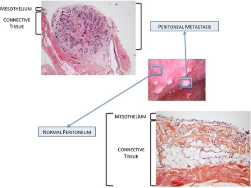 Pathological aspects of normal peritoneum and peritoneal metastasis.