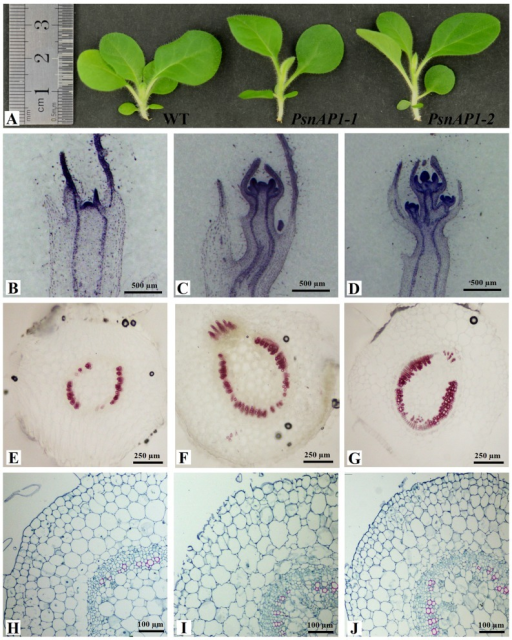 Microscopic observation of tobacco.(A) The seedlings from 25-day-old wild-type and transgenic tobacco plants. (B, C, D) The histological observation of apical shoots from 25-day-old wild-type (B), 35S::PsnAP1-1 (C), and 35S::PsnAP1-2 (D) tobacco seedlings. (E, F, G) Hand-cut sections of 25-day-old wild-type (E), 35S::PsnAP1-1 (F), and 35S::PsnAP1-2 (G) tobacco stems were treated with phloroglucinol-HCl for lignin staining. (H, I, J) Histological observation of 25-day-old wild-type (H), 35S::PsnAP1-1 (I), and 35S::PsnAP1-2 (J) tobacco stems were treated with Safranin T and toluidine blue staining. WT wild-type, PsnAP1-1 35S::PsnAP1-1 line, PsnAP1-2 35S::PsnAP1-2 line.