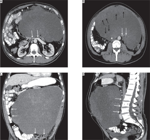 Contrast enhanced axial (A, B), coronal (C), and sagittal (D) computerised tomography scan demonstrates the presence of a giant mass distending the abdomen and pelvis. Heterogeneously enhancing (black arrows in B) lesion placed anterior to the mesenteric vessels (arrows). Coronal image demonstrates the bowel loop (straddling sign) (arrows in C) and mesenteric fat (arrowhead in A) over the mass. Anterior compression of the renal veins and inferior vena cava (arrows in A, arrowheads in B, and arrows in D)