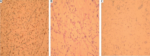 A – Diffuse S-100 positivity in the tumour (immunoperoxidase stain, 200×). B – Spindle-ovoid shaped atypical cells within a myxoid stroma (H + E stain, 200×). C – Ki-67 staining (arrows) in the tumour (immunoperoxidase stain, 200×)