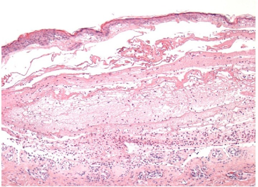 Histology demonstrating subepidermal blisters. The interface between epidermis and dermis layers is infiltrated by densely populated inflammatory cells around the basement membrane zone, including eosinophils (haematoxylin and eosin stain (magnification ×50)). Figure kindly provided by the Histopathology Department, Royal Berkshire Hospital, Reading, UK.