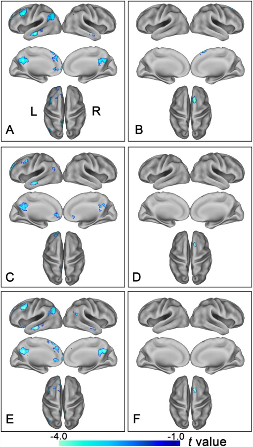 Altered rsFC of the bilateral lateral subregions of the frontal pole in schizophrenia patients.Brain regions exhibit significantly reduced rsFC with the left FPl (A, C) and the right FPl (B, D) in schizophrenia patients. (A, B) show results derived from the method of the maximal probability map and (C, D) demonstrate results derived from the method that using spherical regions of interest as seed regions. Of note, the between-group differences in the rsFC of the bilateral lateral subregions of the FP exhibited highly similar patterns between with (E and F) and without (A, B) correcting GM volume. The statistical threshold was set at p<0.05, FDR correction, two-tailed and cluster size>30 voxels. FPl, lateral subregion of the frontal pole; FP, frontal pole; L, left, R, right.