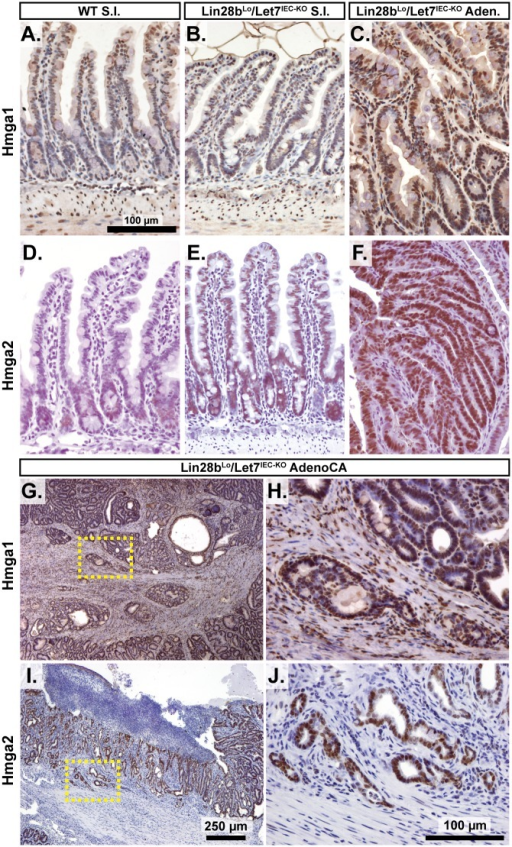 Hmga1 and Hmga2 proteins are increased in invasive areas of adenocarcinomas.Immunohistochemical staining for Hmga2 (A-C, G, H) and Hmga2 (D-F, I, J), in sections from WT small intestine (S.I.) (A, D), Lin28bLo/Let7IEC-KO S.I. (B, E), Lin28bLo/Let7IEC-KO adenoma (C, F), and Lin28bLo/Let7IEC-KO adenocarcinoma (AdenoCA) (G-J). An enlargement of a region containing invasive HMGA1-positive tumor cells from G (dotted yellow box) is pictured in H, while a region containing invasive HMGA2-positive tumor cells from I is likewise displayed in J. Pictures in A-F, H, and J are at same magnification (200x), with scale bar = 100 μm, while pictures in G and I are both at 40x, with scale bar = 250 μm.