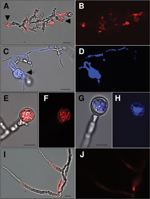 ES-c and ES-d peptides bind F. graminearum cells and induce their swelling. Application of 30 µM TAMRA-ES-d (A, B) or Dabcyl-ES-c (C, D) for 24h at conidia of F. graminearum showed their accumulation at growing mycelia, suppression of conidia germination, and growth as well as swelling and ballooning of cells (arrowheads). (E-H) Examples showing swelling of mycelium tips and accumulation of labelled peptides after application of 60 µM TAMRA-ES-d (E, F) or Dabcyl-ES-c (G, H). (I-J) Application of 30 µM TAMRA-ES-a for 24h at F. graminearum conidia resulted in normal conidia germination and mycelial growth. Only traces of labelled peptide are visible. Micrographs (A, C, E, G, I) show merge of bright field and fluorescence, while micrographs (B, D, F, H, J) show fluorescence. Scales bars are 20 µm in (A-D, I-J) and 10 µm in (E-H).
