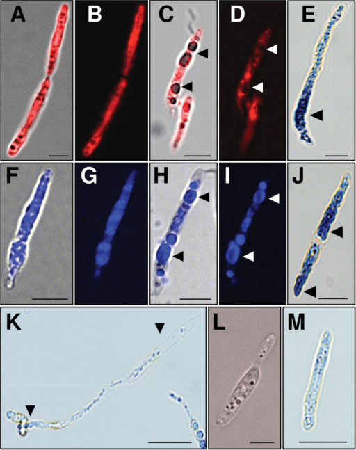 Accumulation of ES-c and ES-d at spores of U. maydis, ROS detection, and spore burst. (A, B) Spores were germinated in PGM for 24h before addition of TAMRA-ES-d at 30 µM. Three hours after application, ES-d appeared in whole spores. (C, D) Three hours after application of 90 µM TAMRA-ES-d, spores showed swelling and enlargement of cells and formation of big vacuoles (arrowheads). (E) ROS were detected by NBT in spores treated for 24h with 60 µM of ES-d (arrowhead). (F, G) Spores were germinated in PGM for 24h before addition of Dabcyl-ES-c at 30 µM. Three hours after application, ES-c appeared in whole spores. (H, I) Three hours after application of 90 µM Dabcyl-ES-c, spores showed swelling, enlargement of cells, and formation of big vacuoles (arrowheads). ES-c accumulated inside vacuoles and fluorescence was not detected at the surface of spores. (J) ROS was detected by NBT in spores treated for 24h with 60 µM ES-c (arrowhead). (K) Six hours after application of 90 µM ES-d there was burst of swelling spores and excretion of vacuoles and cell components (arrowheads). (L) Spores were germinated in PGM for 24h before addition of TAMRA-ES-a at 30 µM. Three hours after application, fluorescence was not detectable and spores showed normal growth behaviour. (M) Traces of ROS were detected in spores treated for 24h with 60 µM ES-a. Micrographs (A, C, F, H, L) show merge of bright field and fluorescence, while micrographs (B, D, G, I) show fluorescence. (K, M) Bright field micrographs. Scales bars are 5 µm in (A-J, L) and 10 µm in (K, M).