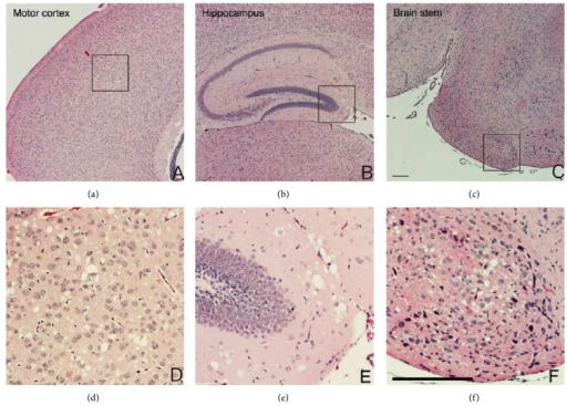 B-Sod2−/− exhibited distinct spongiform encephalopathy in the brain. (a–f) Coronal sections of brains from three-week-old B-Sod2−/−. Motor cortex (a, d), hippocampus (b, e), and brain stem (c, f). A large number of vacuoles were morphologically observed in B-Sod2−/−. Higher power views (inset) showed neuronal degeneration and malformation with cytoplasmic vacuolization, as well as pleomorphic nuclei (d, e, and f). The scale bars indicate 200 μm.