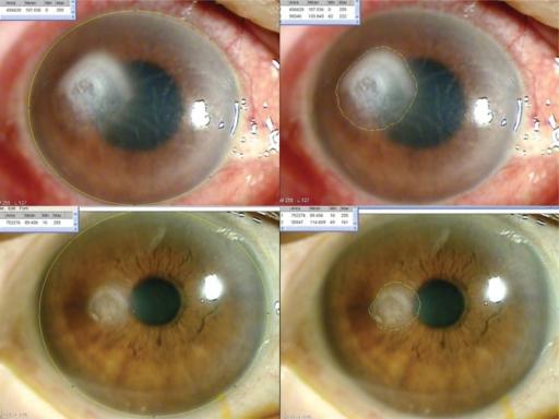 Measurement of corneal opacity size with Image J progra ...