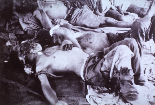 <p>Second Hiroshima Military Hospital.  The man in the foreground has sustained burns of the face and hands.  Clothing apparently protected the remainder of his body.  Simple dressings have been applied to the face and hands.</p>