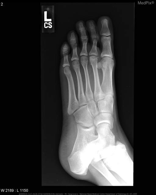 Flattening of the articular surface, subchondral lucency, and subchondral sclerosis are seen at the head of the second metatarsal bone.