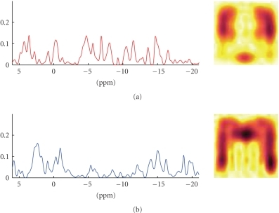 Brain imagingdata: random draw from the prior distribution with the parameters set asdescribed in the text. The prior distribution of the constituent spectra (left)is exponential and smooth, and the spatial distribution (right) in the brain isexponential, smooth, and has a left-to-right symmetry.