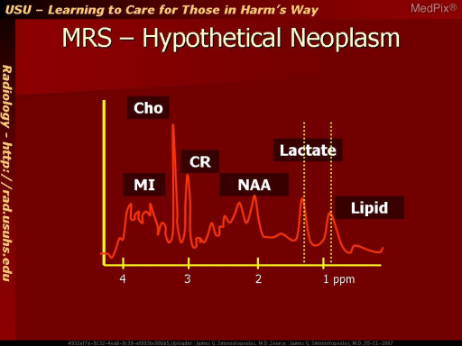 Hypothetical MR spectroscopy in a neoplasm.  Hunter's Angle is broken.  The n-acetyl-aspartate peak (NAA) is missing; and, the choline (Cho) peak is greater than creatine (CR).  This suggests an increase in cell synthesis - corresponding to a neoplasm.  Lactate and lipid may also be elevated with tumor necrosis.