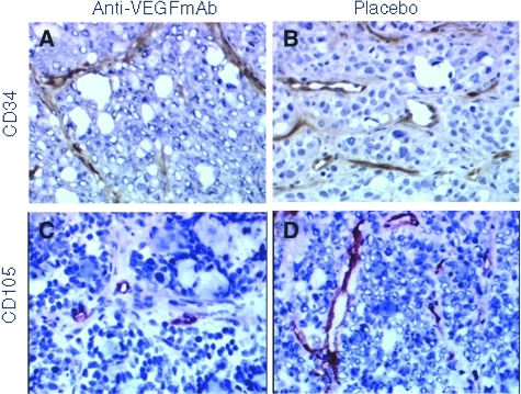 CD34 (A, B) and CD105 (C, D) staining of colorectal tumours shows decreased VD in tumours treated with anti-VEGF mAb (A, C) vs placebo (B, D). Original magnification × 200.