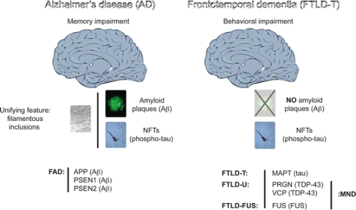 a survey of features and stages of alzheimers disease