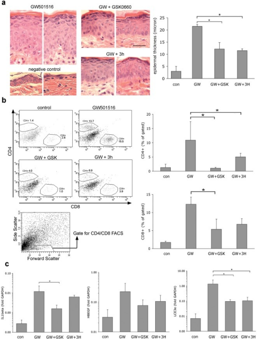 Reversal of psoriasis-like skin disease in PPAR β/δ mice by PPAR β/δ antagonists.Skin disease was induced by systemic oral administration of the PPAR β/δ agonist GW501516. (Control mice received standard chow). Subsequently, GW501516 dose was lowered to allow maintenance of phenotype as described in the text and mice were treated twice daily with either vehicle only (GW501516 group) or antagonist-containing ointments, as indicated. A. Reversal of epidermal hyperplasia, performed as described in the legend for figure 5. Horizontal bar represents 5 µm. B. Reduction of T cell infiltration. Skin samples of the treated skin regions were processed and stained for FACS analysis as described in Methods. Scatter plots shown on left show representative data, column diagrams on right show quantification of FACS data in n = 4 mice per group. The scatter plot shown at the bottom indicates the lympocyte gate used for quantification of CD4/CD8 cells, as previously described [21]. C. Quantification of target genes previously been shown to be induced in PPAR β/δ transgenic mice by qPCR, as detailed in Methods. * p<0.05 in a two-sided independent t-test.