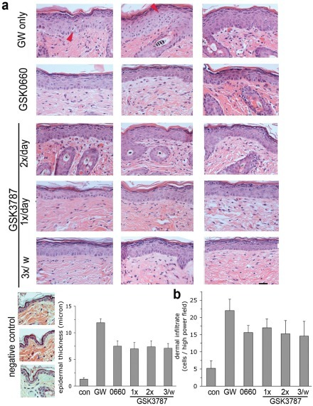 Control of PPAR β/δ – mediated skin disease using reduced-frequency application of ointment containing an irreversible PPAR β/δ antagonist.Skin disease in PPAR β/δ transgenic mice was induced by i.p. injection of the agonist GW501516. Additionally, mice were shaved on their abdomen and were treated with vehicle-ointment or ointment containing either GSK0660 (twice daily) or GSK3787 at the indicated frequencies. Red arrow denotes apoptotic cells noted in the GW-only treatment group. A. Top: Representative H&E stains from 3 different mice in each treatment group. Horizontal bar represents 5 µm. Bottom: Quantification of epidermal thickness (p<0.01 in all treatment groups vs. GW-only). B. Quantification of dermal infiltrate. Data shown represent average ± s.d. of five mice per group.