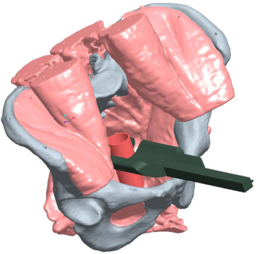 Illustration of coronal placement of CC.