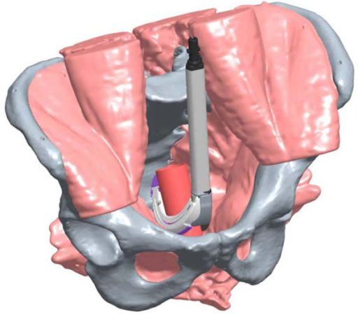 Illustration of sagittal placement of RR.