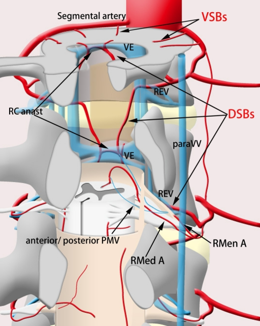 Schematic drawing of the spinal vascular anatomy releva   Open-i