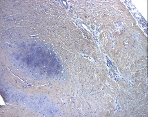 Histologic examination of cryopreserved aortic allograft at 2 months (sheep model) showing regenerated cartilage (hematoxylin and eosin staining; original magnification ×10).