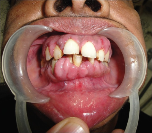 Clinical picture of bulbous gingival enlargement in a female epileptic patient with more prominent involvement of the interdental papillae (GRADE 3) after 6 months of phenytoin therapy