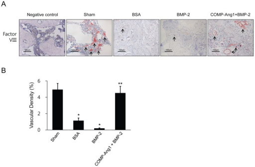 Immunohistochemical staining for factor VIII-related antigen and vascular densities in infarcted femoral heads.(A) Immunohistochemical staining for factor VIII-related antigen in the sham, BSA, BMP-2, and COMP-Ang1 + BMP-2 groups. (B) Vascular densities were measured in six rats from each group and two images were taken (magnification ×200) of each femoral head. The number of factor VIII-related antigen-positive vessels was significantly higher in the COMP-Ang1 + BMP-2 group than in the BSA and BMP-2 groups. Vascular density in each image was calculated as follows: vascular area stained by antibody for factor VIII-related antigen/total area of each image × 100 (%). Data are expressed as the mean ± SEM (n =  6 per group). *p<0.01 vs. sham; **p<0.01 vs. BSA or BMP.