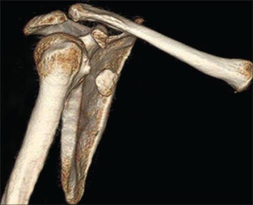 Three-dimensional computed tomography reconstruction image showing of displaced coracoid process fracture