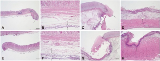 Representative histological findings of endoscopic mucosal dissection (ESD) specimens and residual muscularis propria tissue from the Optimos knife group (A-D) and combination knives group (E-H; H&E stain). (A, B) ESD showing minimal injury to the lamina propria and submucosa in the Optimos knife group. (C, D) Residual bed tissue showing minimal injury to the lamina propria and muscularis propria in the Optimos knife group. (E, F) ESD showing minimal injury to the lamina propria and submucosa in the combination knives group. (G, H) Residual bed tissue showing marked injury in the lamina propria and muscularis propria in the combination knives group. Arrows represent the extent of injury. Scale bars represent 50 µm in (B) and (F) and 500 µm in the others.