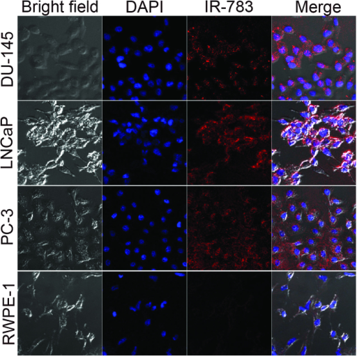 Selective dye uptake in DU-145, LNCaP, PC-3 prostate cancer cells. Only a weak near infrared fluorescence (red) was observed in RWPE-1 normal human prostate epithelial cells (magnification, ×200). The nuclei were stained with DAPI (blue).