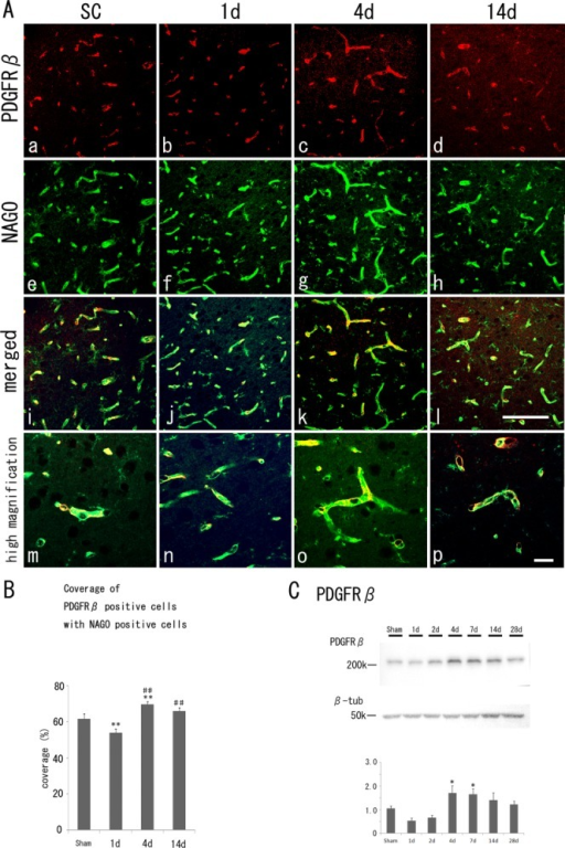 A: Fluorescent immunohistochemistry of PDGFRβ-positive pericytes (a–d, red), NAGO-positive endothelial cells (e–h, green), merged images (i–l) with their high magnification images (m–p) in the cerebral cortex of the sham control (SC) and the border zone of ischemic regions at 1, 4, and 14 days after tMCAO. B: Quantitative coverage ratio of pericytes to endothelial cells shows a transient reduction (1 day) and overshoot recovery (4 days) after tMCAO. C: Western blot analysis shows an increase of PDGFRβ (210 kDa) level at 4 days and 7 days. *P < 0.05 vs. SC, **P < 0.01 vs. SC. ##P < 0.01 vs. 1 day. Scale bars = 100 μm in l (applies to a–l); 20 μm in p (applies to m–p).