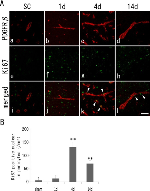 A: Double immunohistochemistry of PDGFRβ-positive pericytes (a–d, red), Ki67-positive cells (e–h, green), and merged images (i–l, arrowheads in double-positive cells) with a peak at 4 days (B). **P < 0.01 vs. SC. Scale bar = 100 μm.