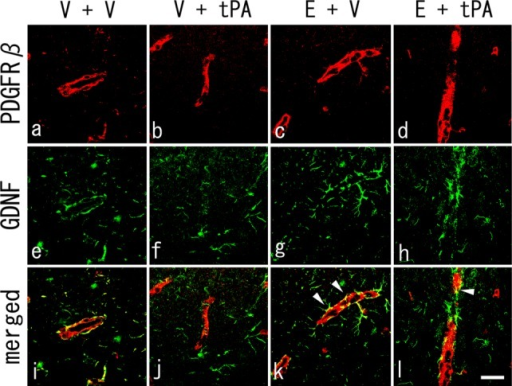 Double immunohistochemistry of PDGFRβ-positive pericytes (a–d, red), GDNF-positive cells (e–h, green), and merged images (i–l) at 4 days after tMCAO. Note that the fluorescent signals for GDNF were partially observed surrounding the PDGFRβ-positive pericytes in the V + V group (i), with weaker signals observed in the V + tPA group (j). Also note the preserved GDNF secretion and overlapping pericytes in E + tPA and E + V groups (k,l, arrowheads). Scale bar = 100 μm