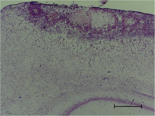 Paraffin section from the brain of an injured rat showing a typical superficial, rounded lesion. Cresyl violet. Scale bar 500 μm