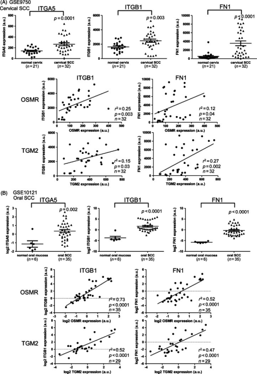 Integrin–α5β1 and fibronectin expression in cervical and oral SCCs. The panels show data derived from microarray analysis of (A) cervical SCCs (sample set 3) and (B) oral SCCs (sample set 5). In each panel, the top row shows levels of integrin–α5 (ITGA5; left), integrin–β1 (ITGB1; middle) and fibronectin (FN1; right) in normal mucosa and SCC tissues, while the middle and bottom rows show linear regression analysis of expression of ITGB1 and FN1 versus OSMR (middle) or TGM2 (bottom) in the SCC samples