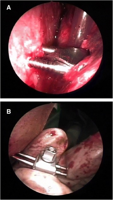 Endoscopic view of pins inserted into the condyle stump (a) and into the ramus (b).