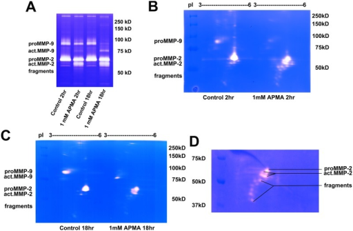 2D Zymography Reveals Gelatinase Isoforms From HT1080 Cell Conditioned Medium In Vitro Exposed To APMA