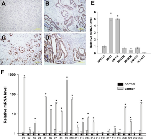 Overexpression of DPY30 in gastric cancers.(A-D) Immunohistochemical staining demonstrated the overexpression of DPY30 in gastric cancer tissues. Notably its overexpression was obviously greater in invading cancer cells (B-D) than in normal gastric mucosa (A). (E) The mRNA level of DPY30 in gastric cancer cells (SNU1, SNU16, SNU216, SNU620, SNU638 and NCI-N87) and normal gastric epithelial cell (HFE145) was determined by real-time PCR using specific primers for DPY30. GAPDH was used to normalize data. Values shown are the means ± SDs of the three independent experiments performed in triplicate. *, p < 0.01 (Student's t test, versus HFE145). (F) The expression of DPY30 in gastric cancer tissues was examined by real-time PCR using specific primers for DPY30. GAPDH was used to normalize data. Values are the means ± SDs of three independent experiments performed in triplicate. *, p < 0.01; **, p < 0.05 (Student's t test, versus normal).