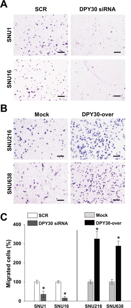 DPY30 regulated the invasion of gastric cancer cells.(A-B) A Matrigel invasion assay was used to measure gastric cancer cell invasion. Presented results are representative of the results obtained. 10% FBS was used to induce invasion, and mitomycin C (0.01 μg/ml) was added to remove effects of proliferation. Invasion assays were performed two days after transfection with 100 nM ORF-targeting DPY30 or SCR siRNA. After culture for one day, invasion assay was carried out for the DPY30-over and mock cells. Bar = 100 μm. (C) Invasive cells were counted and results are displayed as a bar graph. Values are the means ± SDs of three independent experiments performed in triplicate. *, p < 0.01 (Student's t test, versus SCR or Mock).