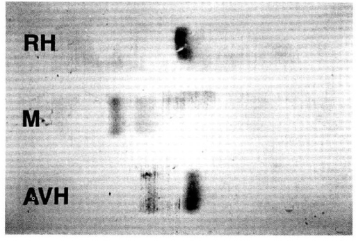 The electrophresis patterns of sampes [lane RH; from purified aspartate aminotransferase (c-AST) from hemolysed red blood cell (RBC), lane AVII; serum from acut viral hepatitis patient due to hepatitis B vivires, lane M; serum from macroaspartatemia patient] after AST stain by Sakakibara's method. There is single band in RH lane(purified cytoplasmic-AST from RBC; 250IU). In lane AVH, there are two bands of which one is a major band corresponding to c-AST in RH lane and the other is a minor band suggested to mitochondrial-AST (m-AST). In M lane, there are two bands of which one is a minor band suggested to m-AST in AVH land and the other is a major band which is a new one. See text for further discussion.
