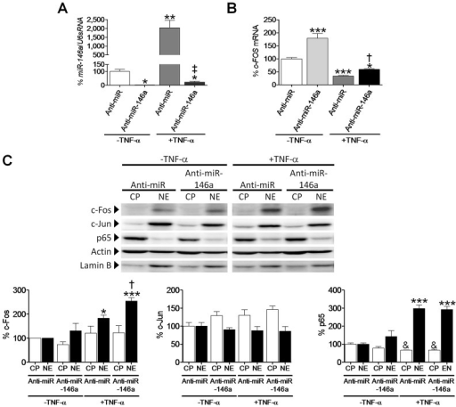 miR-146a inhibition induces Fos in human cardiac cells. Relative quantification of miR-146a (A) and Fos (B) mRNA levels in human cardiac AC16 cells after transfection with a human anti-miR-146a inhibitor or an anti-miR negative control (Anti-miR). The graph represents the quantification of (A) U6sRNA- or (B) 18S-normalized mRNA levels, expressed as a percentage of control samples ±s.d. *P<0.05, **P<0.01 and ***P<0.001 vs Anti-miR–TNF-α; †P<0.05 and ‡P<0.001 vs Anti-miR+TNF-α. (C) Western-blot analysis showing the protein levels of Fos, Jun and p65 in cytosolic (CP) and nuclear (NE) protein fractions obtained from human cardiac AC16 cells as described in panel A. To show equal loading of protein, the actin and lamin B signals from the same blot are included. The graphs at the bottom of panel C represent the quantification of protein levels normalized to actin (CP) or lamin B (NE), expressed as a percentage of CP or NE control samples ±s.d. The blot data are representative of two separate experiments. *P<0.05 and ***P<0.001 vs NE Anti-miR–TNF-α; †P<0.05 vs NE Anti-miR+TNF-α; &P<0.05 vs CP Anti-miR–TNF-α.