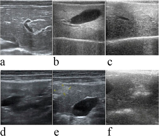 Ultrasound images of normal liver, fatty liver and liver with fibrosis.Normal liver tissue ultrasonogram (a): the liver capsule is neat and smooth with a linear, slim, strong echo, and there is a small gap in the linear echo at the peritoneal wall. The liver parenchyma spots are fine and uniformly distributed, the intrahepatic duct system is normal, the texture is clear, and entrant sound is good. Fatty liver tissue ultrasonogram (b,c): the liver capsule is neat and smooth, and the liver edge is obtuse. Intrahepatic echoes are fine and closely woven with uneven echoes. Intrahepatic vessels were significantly decreased. Liver fibrosis tissue ultrasonogram (d–f): the liver surface (d) is irregular and rough, and the liver parenchyma is uneven with irregular necrotic foci (e,f).