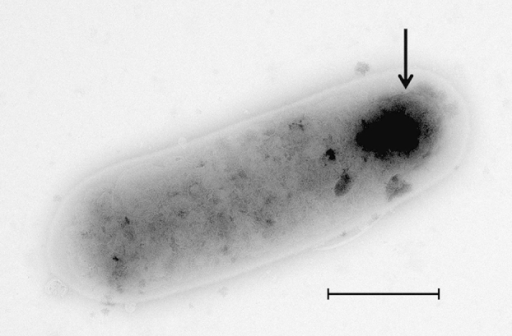 Transmission electron microscopy of Virgibacillus massiliensis strain Vm-5T, using Morgagni 268D transmission electron microscope (Philips/FEI, Hillsboro, OR, USA) at operating voltage of 60 kV. Scale bar = 500 nm. Arrow indicates terminal spore.