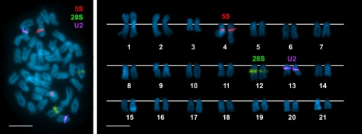 Chromosomal mapping of rRNA and U2 snRNA genes to chromosomes of Merluccius merluccius.Double-FISH experiments using a 28S rDNA probe (green) and a 5S rDNA probe (red) demonstrate the presence of a single clusters for both 45S and 5S rRNA genes on different chromosome pairs (a). Rehybridization of the same metaphases with an U2 snDNA probe (violet) also give signals at a single location on a different chromosome pair (a). The corresponding karyotype shows these signals on chromosome pairs 12, 4 and 13, respectively (b). Chromosomes are counterstained with DAPI. Scale bars, 5 μm.
